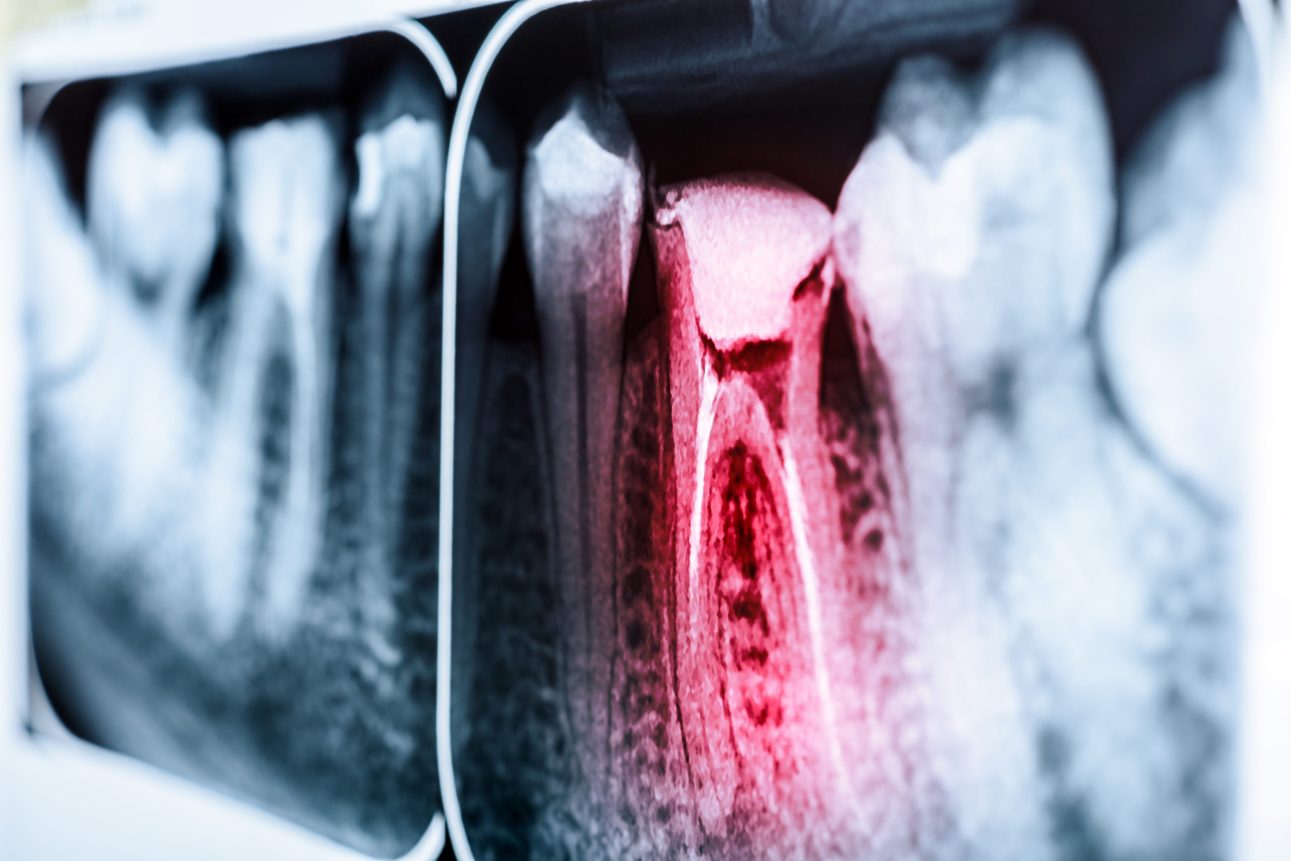 Pain Of Tooth Decay On Teeth X-Ray
